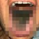 【閲覧注意】舌の上に真っ黒い毛のようなものがびっしり生えた女性が話題